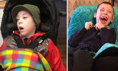 Remarkable Transformation of Severely Epileptic Boy After Using CBD-THC Oil